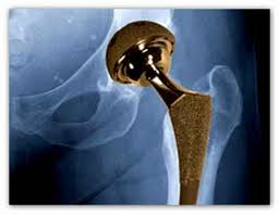 metal on metal hip injury attorney