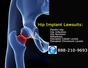 Metal Hip Implant Failure Lawsuits