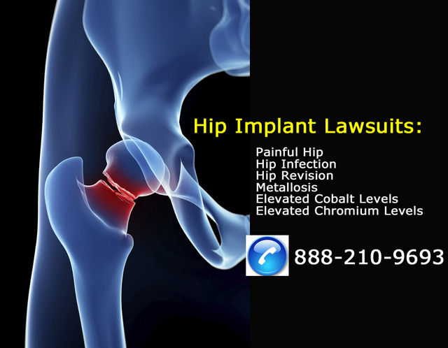 Hip_Implant_Failure_Attorney