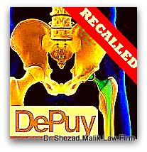 Depuy Pinnacle hip failure lawsuits