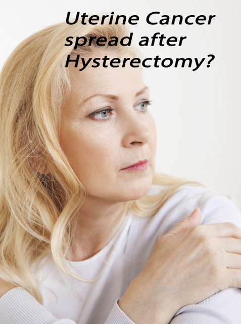 Sex after cancer hysterectomy