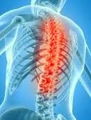 medtronic bone graft injury attorney